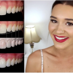 How Dr Lazaris transformed one of Australia's fave beauty vloggers, Shani Grimmond's teeth